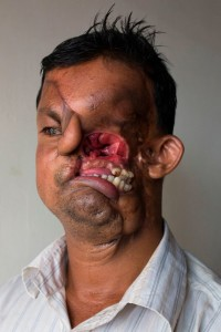 Fisherman-Whose-Face-Was-Destroyed-By-A-Tiger-Admitted-For-Surgery-At-Dhaka-Medical (3)